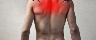 Боль вверху спины