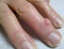 Шишки на пальцах руки или ноги – гигрома