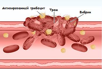 Плохая свертываемость крови (гипокоагуляция): причины и лечение
