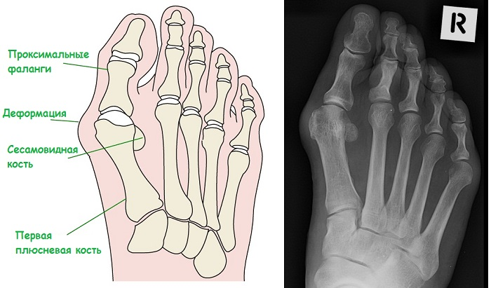 Диагностика шишки на ноге
