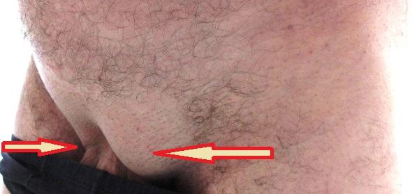 Симптомы паховой грыжи – фото