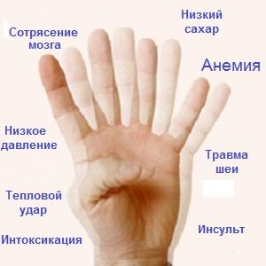 Основные приыины головокружения и тошноты