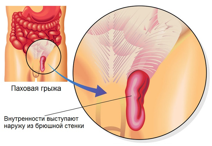 С образный сколиоз грудного отдела позвоночника лечение