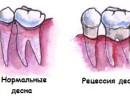 Десна отошла от зуба – рецессия