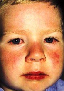 Симптомы болезни Кавасаки – лицо