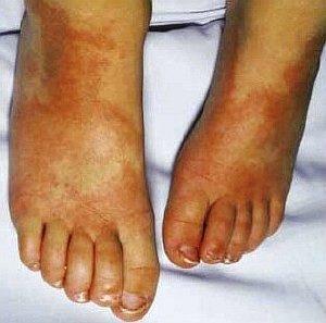 Симптомы болезни Кавасаки – стопы
