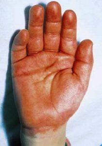 Симптомы болезни Кавасаки – ладонь