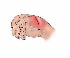 Инфицированные раны плохо заживают