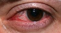 Неправильное ношение контактных линз