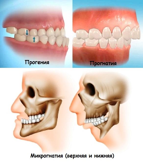Маленькая нижняя челюсть у новорожденного — Болезни полости рта