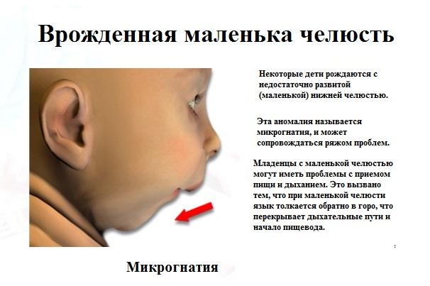 Микрогнатия – маленькая челюсть у ребенка