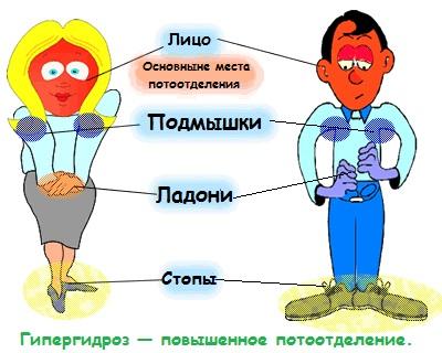 сильная потливость это признак паразитов в организме