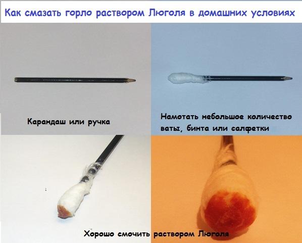 Применение раствора Люголя при ангине в домашних словиях