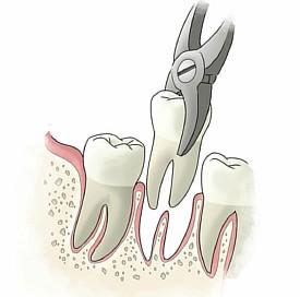 Плохо заживает рана после удаления зуба