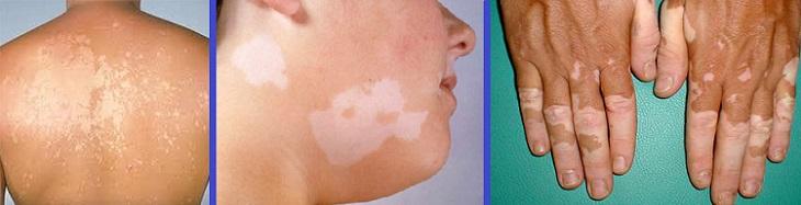 Как избавиться от пигментных пятен у косметолога