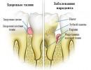 Заболевания пародонта: причины, симптомы, лечение
