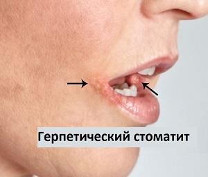 Лечение герпетического стоматита