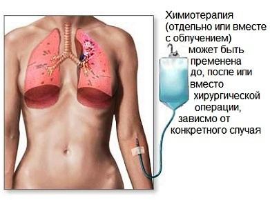 Химиотерапия в лечении рака легких