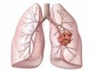 Рак легких: первые симптомы и методы диагностики