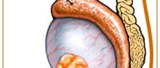 Рак яичка у мужчины