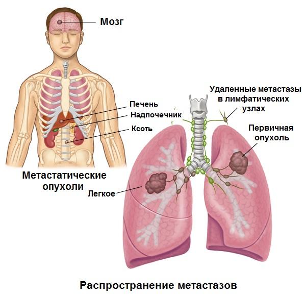 Распространение метастазов при раке легких