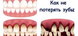 Шатаются и выпадают зубы