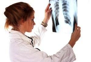 Установление продолжительности жизни при раке легких