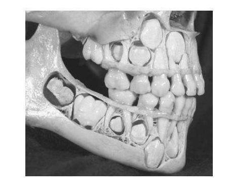 Фото трпипофобии – череп ребенка с невыпавшими молочными зубами