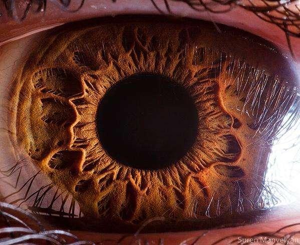 Фото трпипофобии – абсолютно здоровое глазное яблоко