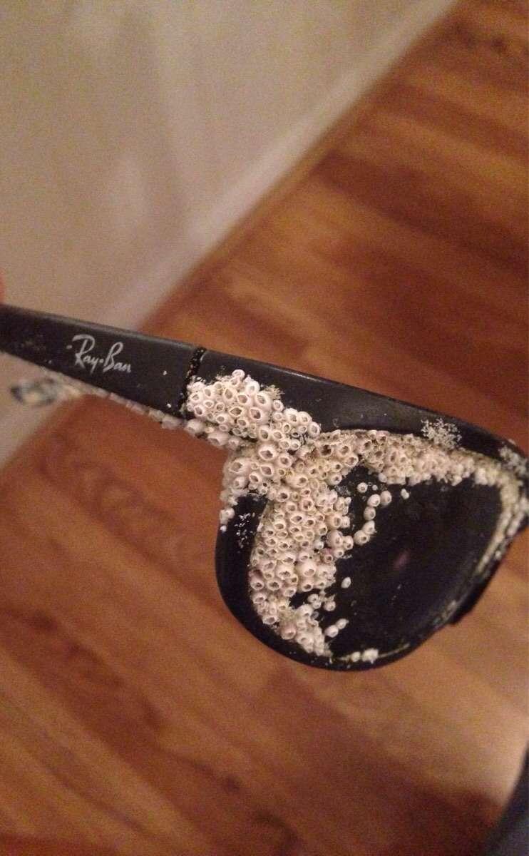 Фото трпипофобии – обросшие ракушками очки