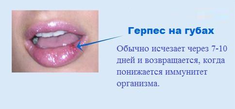 герпес на губе лечение быстро