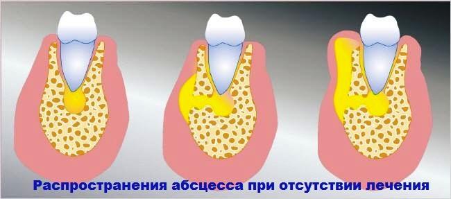 Осложнение зубного флюса (периостита)