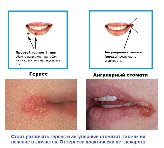 Заеды в уголках губ у ребенка фото