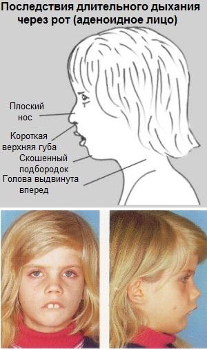 Аденоидное лицо