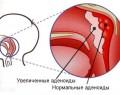 Увеличенные аденоиды у ребенка: симптомы, причины, лечение, фото