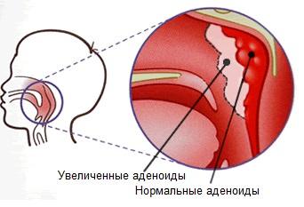 Аденоиды у ребнка