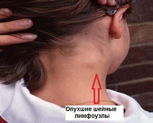 Увеличение лимфоузлов на шее