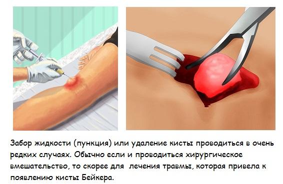 все болезни коленного сустава народными средствами