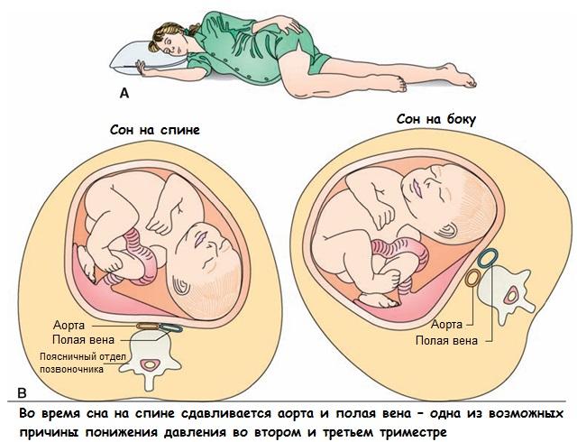 Сон на спине – причина понижения беременности во втором и третьем триместре