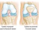 Заболевания коленного сустава и их лечение