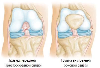 Изображение - Болезнь коленных суставов ног razryv_kolennyh_svyazok