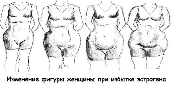Изменение фигуры женщины при избытке эстрогена