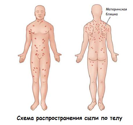 Схема распространения сыпи по телу