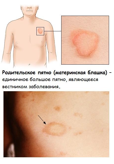 Материнская бляшка – первый симптом розового лишая
