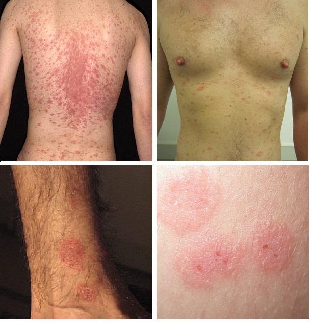 Сыпь на разных частях тела при розовом лишае