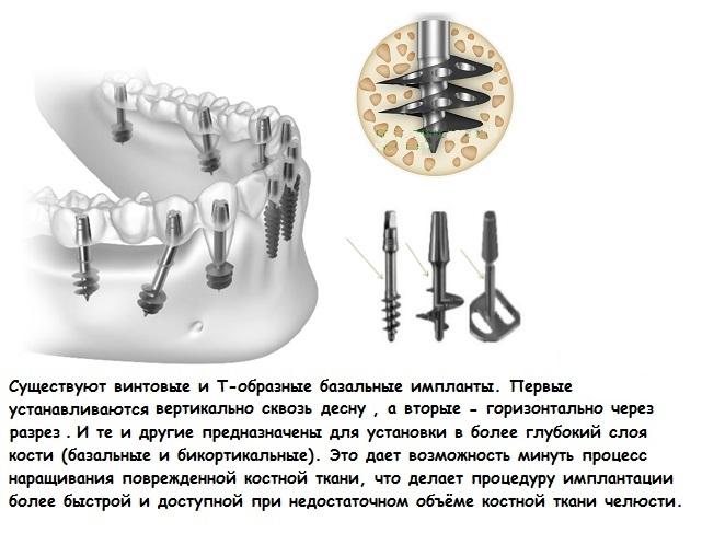 что такое имплантация кривых зубов