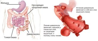 Дивертикулез сигмовидной кишки