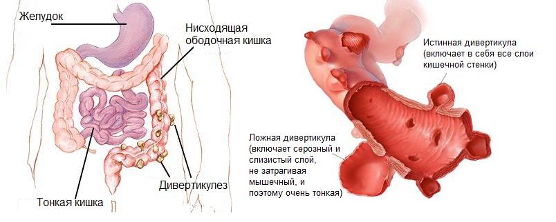 Дивертикул кишечника диета
