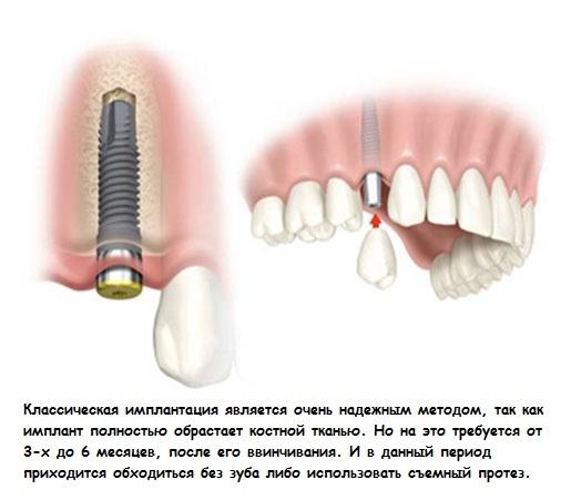 Имплантация всех зубов отзывы больно
