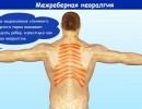 Межреберная невралгия: симптомы и лечение в домашних условиях
